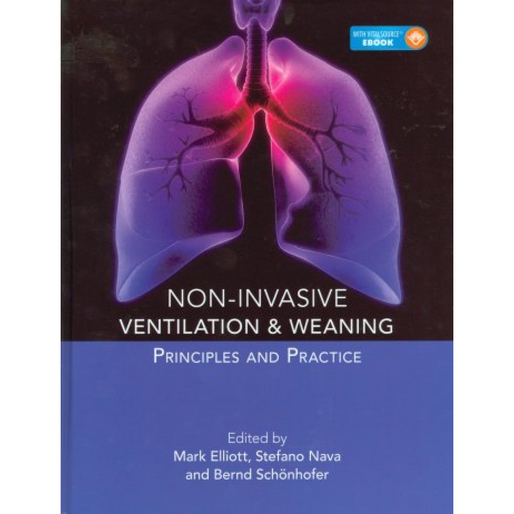 Non-Invasive Ventilation and Weaning: Principles and Practice