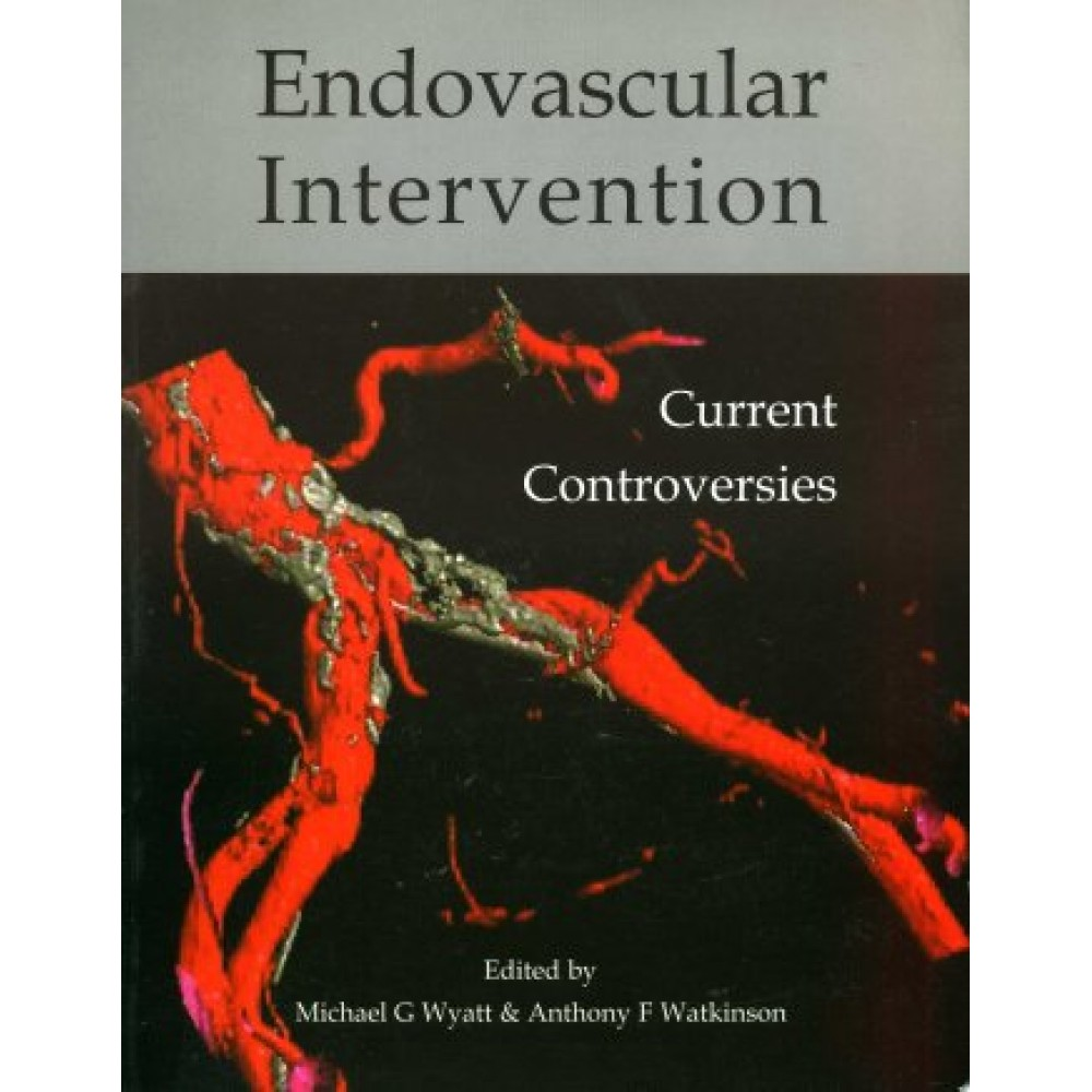 Endovascular Intervention, Current Controversies