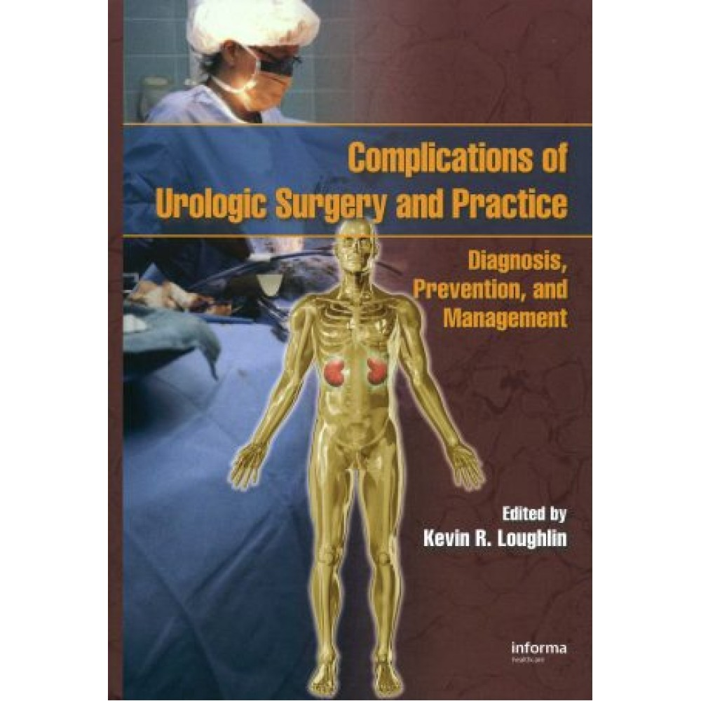Complications of Urologic Surgery and Practice