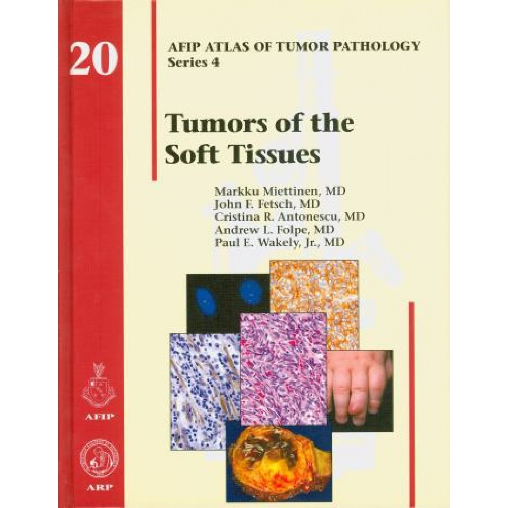 AFIP Atlas of Tumor Pathology: Tumors of the Soft Tissues