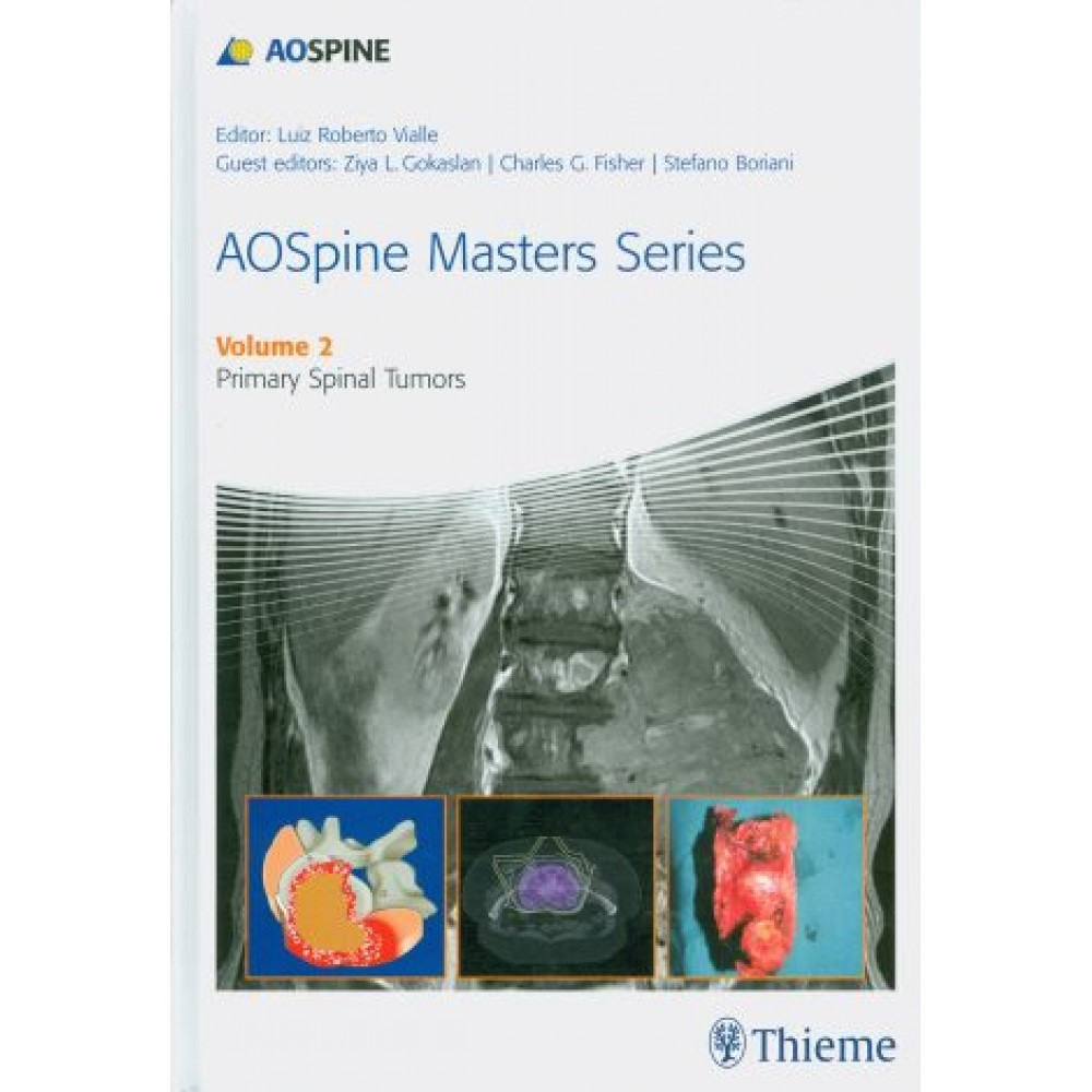 AOSpine Masters Series Vol. 2: Primary Spinal Tumors