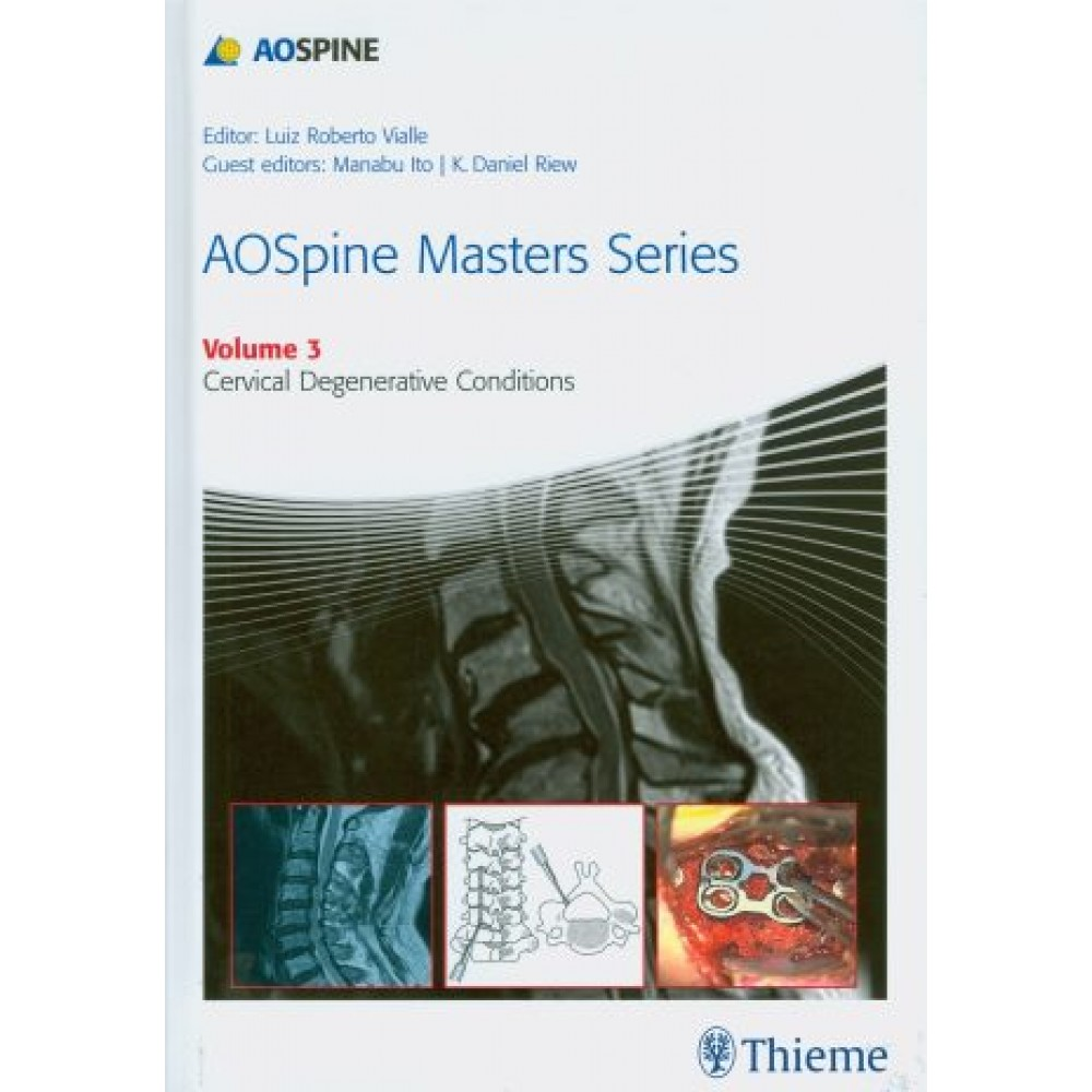 AOSpine Masters Series Vol. 3: Cervical Degenerative Conditions