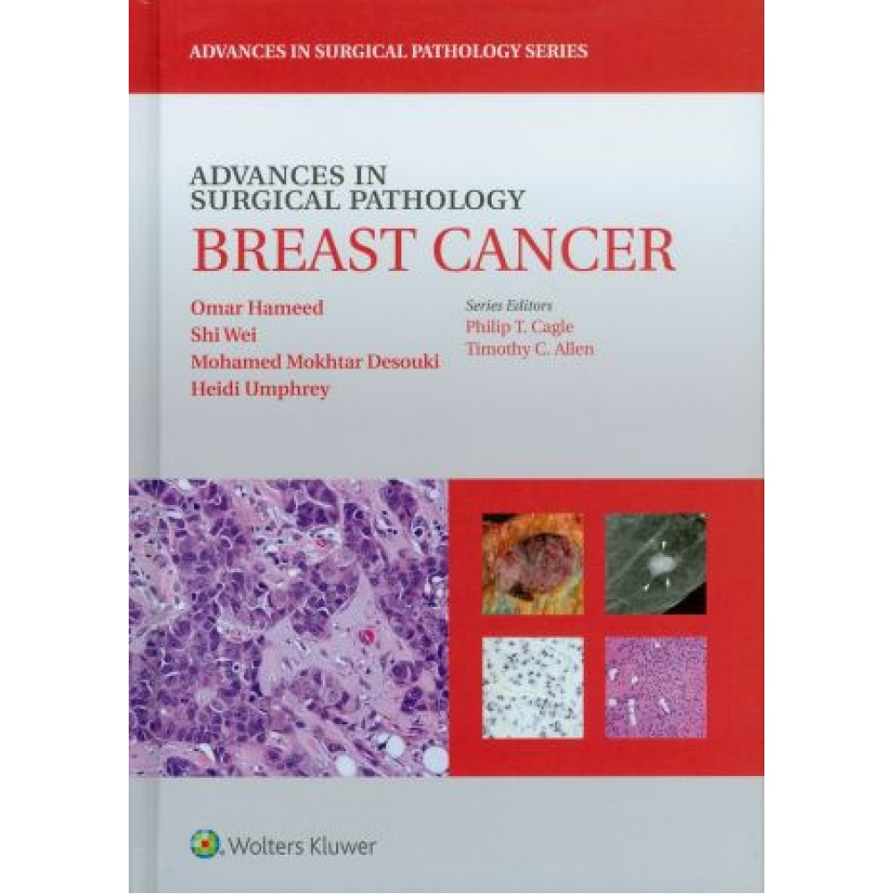 Advances in Surgical Pathology: Breast Cancer