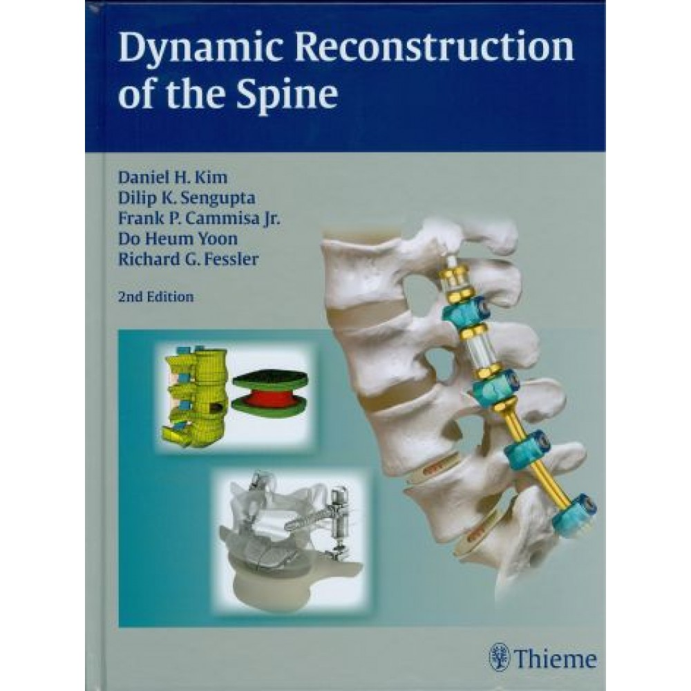Dynamic Reconstruction of the Spine, 2nd Edition
