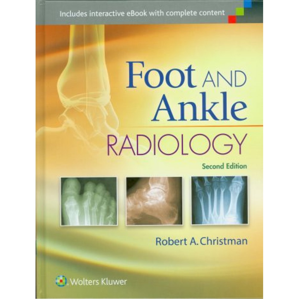 Foot and Ankle Radiology, 2nd Edition