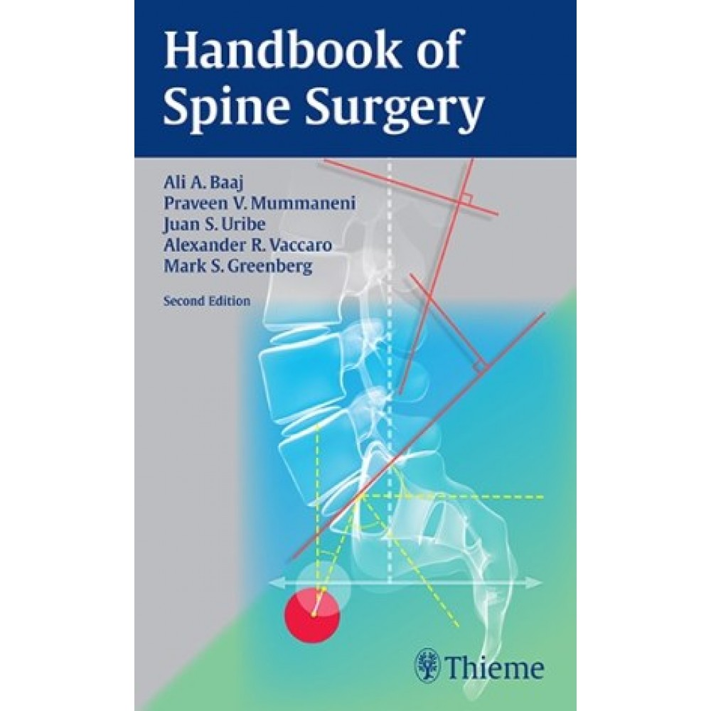 Handbook of Spine Surgery, 2nd Edition