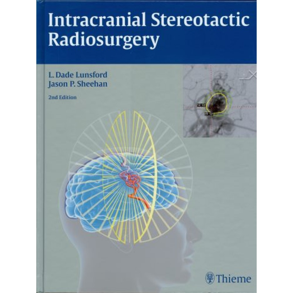Intracranial Stereotactic Radiosurgery, 2nd Edition