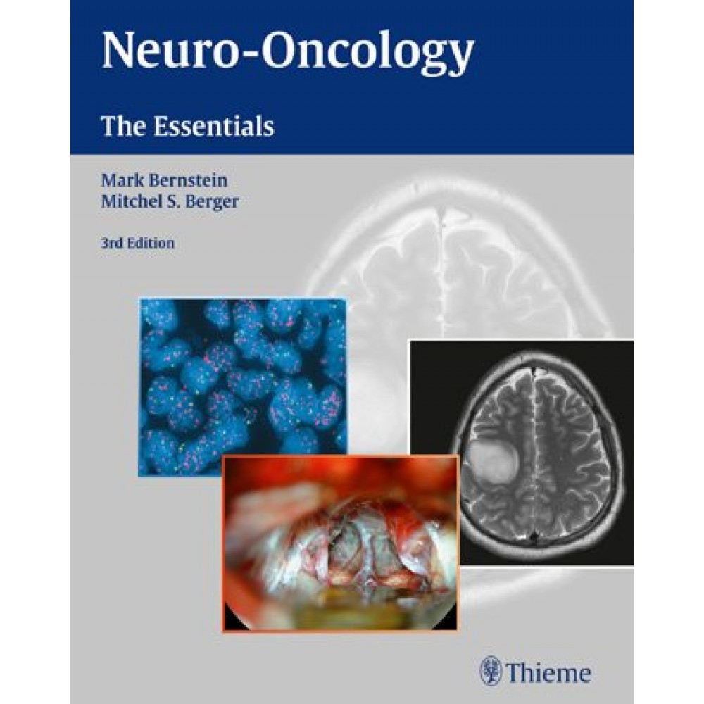 Neuro-Oncology: The Essentials, 3rd edition