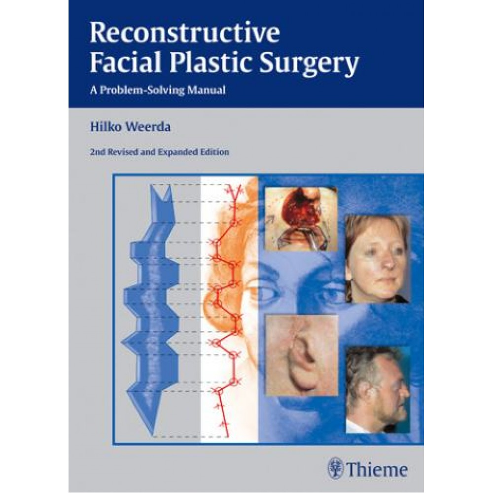 Reconstructive Facial Plastic Surgery, 2nd Edition