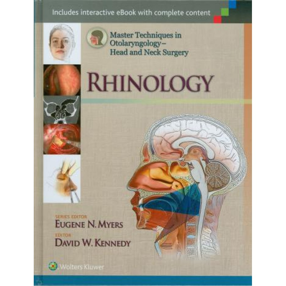 Head and Neck Surgery: Rhinology