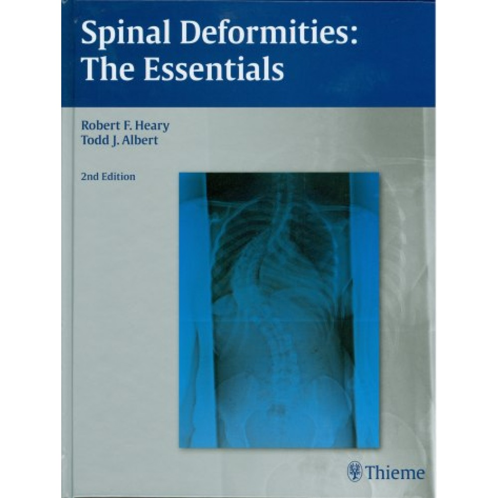Spinal Deformities : The Essentials, 2nd Edition