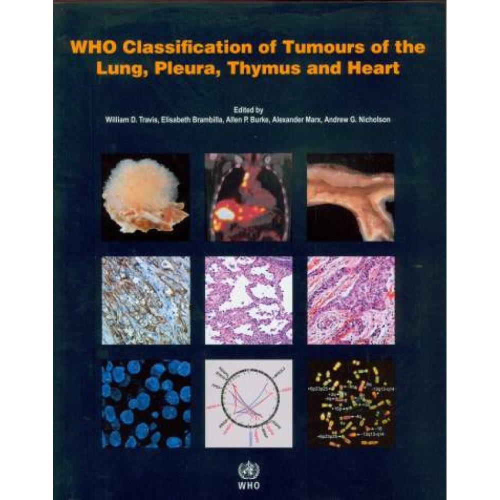 WHO Classification of Tumours of the Lung, Pleura, Thymus and Heart, 4th Edition